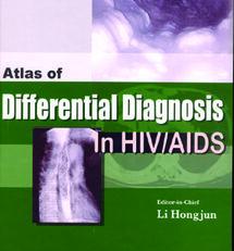 AtlDifDiaHIV